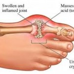 gout arthritis in foot