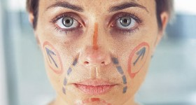 facial cosmetic surgery preparation